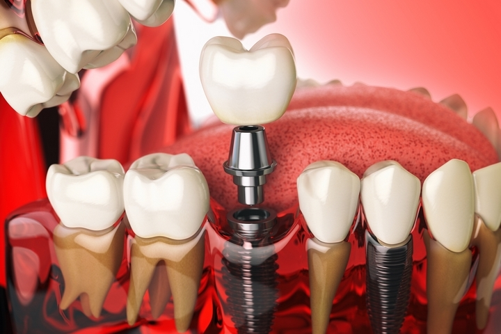 5 Essential Steps to Take Care of Your Dental Implants